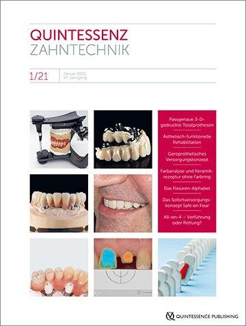 QZ - Quintessenz Zahntechnik, 1/2021