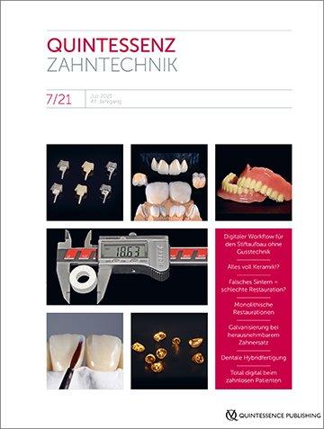 QZ - Quintessenz Zahntechnik, 7/2021