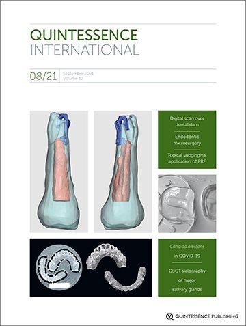 Quintessence International, 8/2021