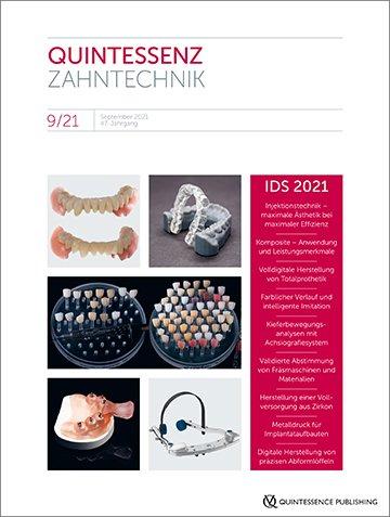 QZ - Quintessenz Zahntechnik, 9/2021