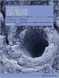 The Journal of Adhesive Dentistry, 2/2020