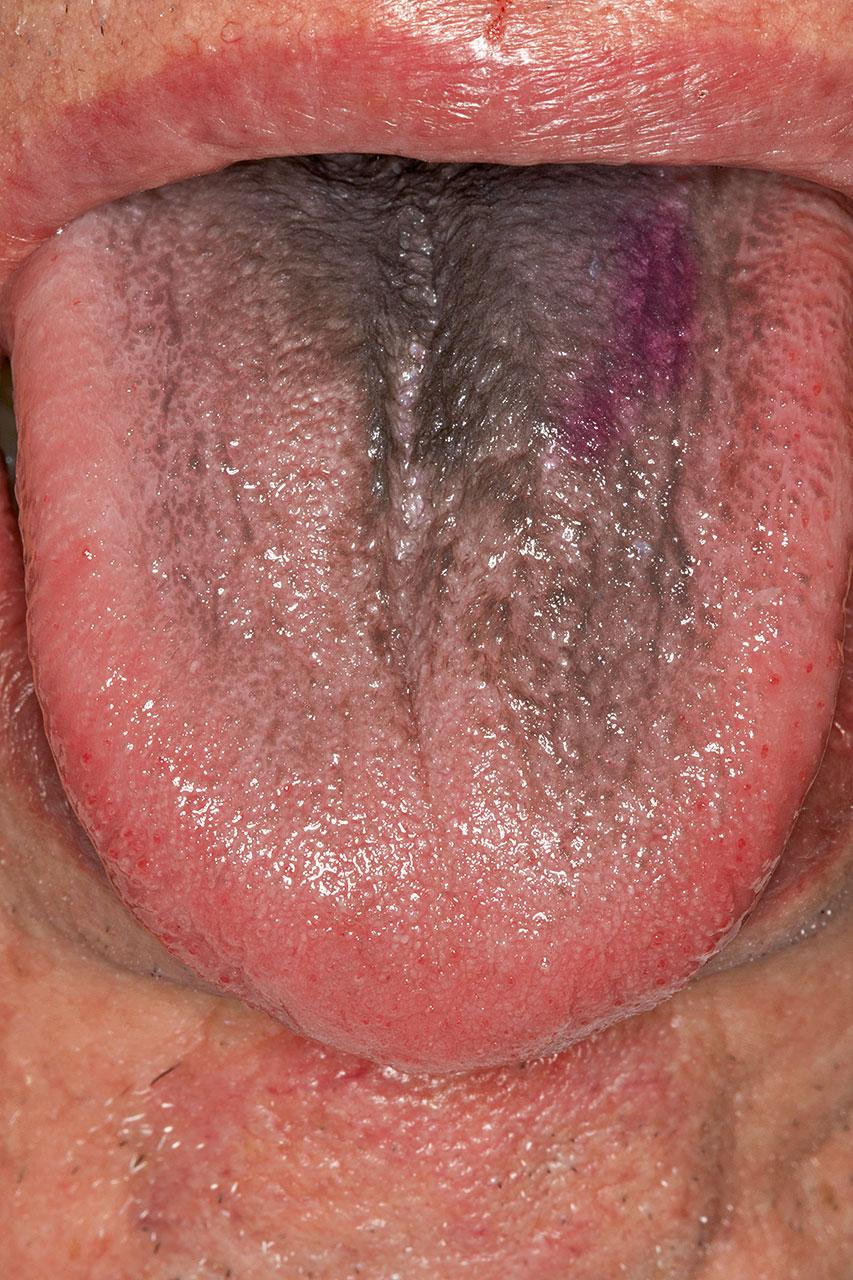Zungenbelag weiße Zungenpilz Ursachen