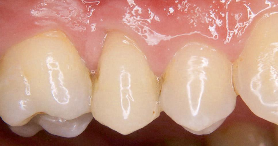 Graue verfärbung zahn Zahn färbt