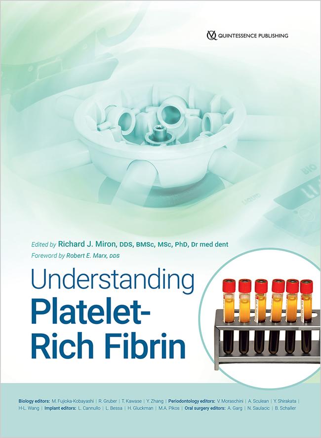 Miron: Understanding Platelet-Rich Fibrin