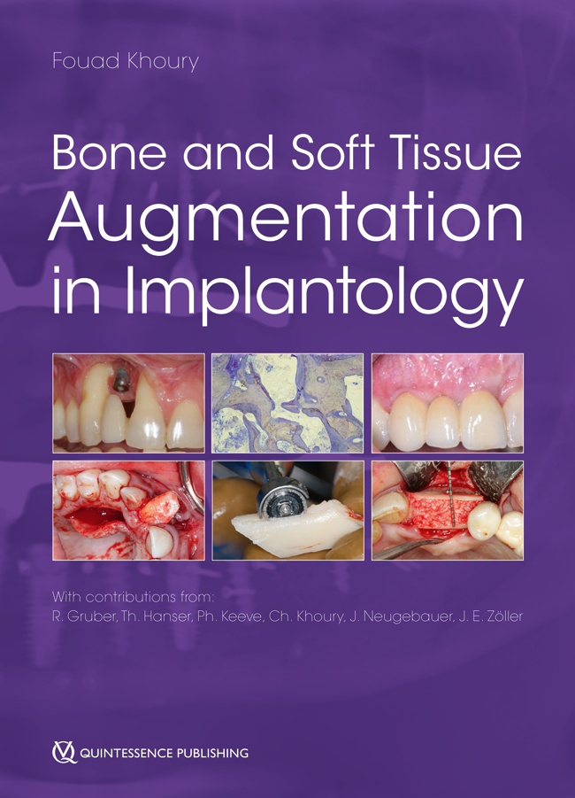 Khoury: Bone and Soft Tissue Augmentation in Implantology