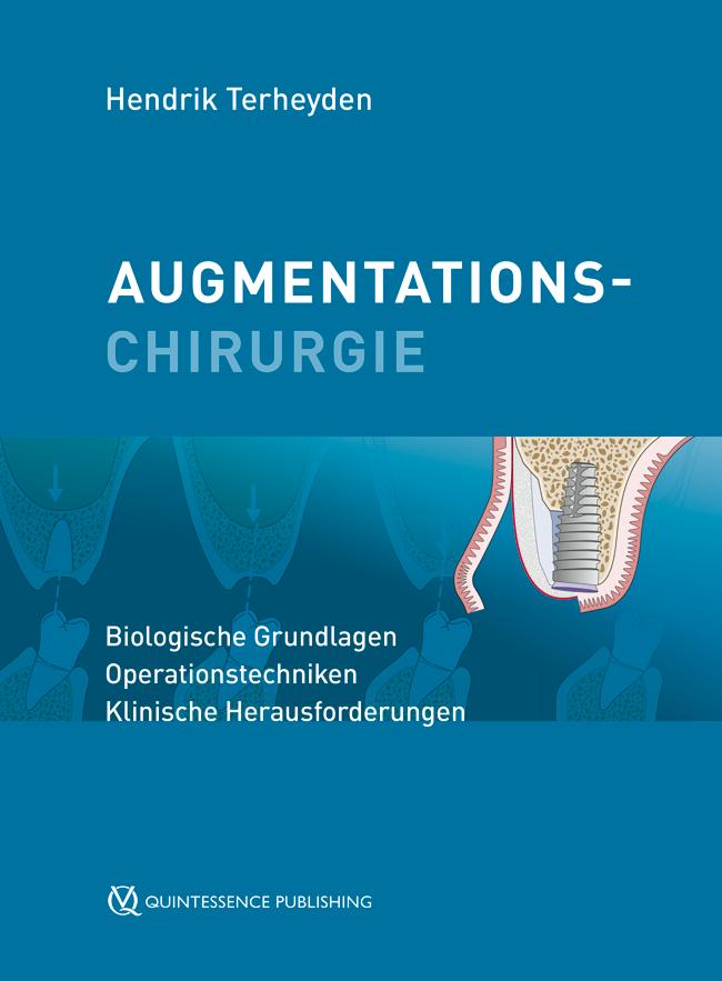 Terheyden: Augmentationschirurgie