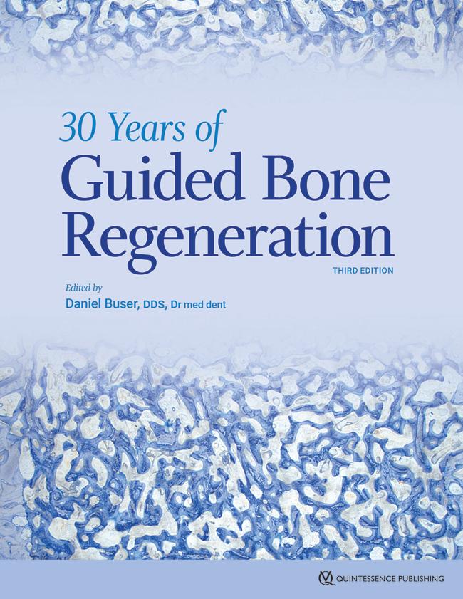 Buser: 30 Years of Guided Bone Regeneration