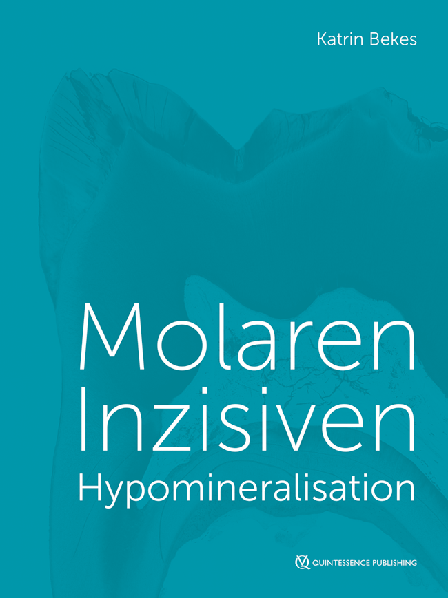 Bekes: Molaren-Inzisiven-Hypomineralisation