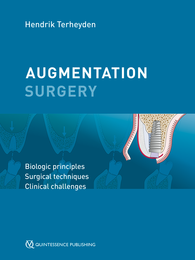Terheyden: Augmentation Surgery