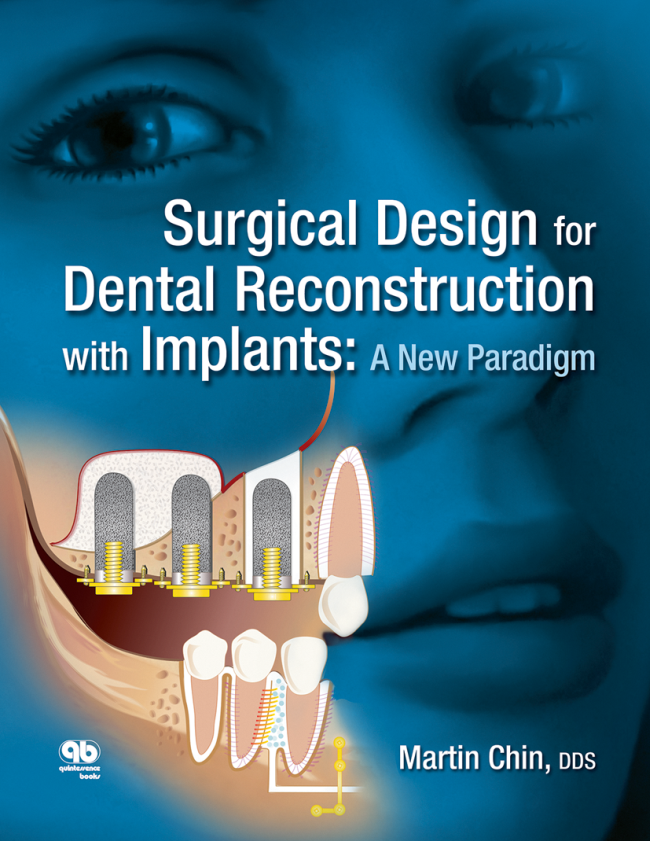 Chin: Surgical Design for Dental Reconstruction with Implants