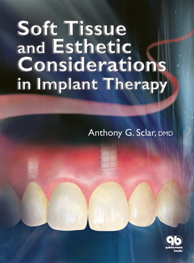 Sclar: Soft Tissue and Esthetic Considerations in Implant Therapy