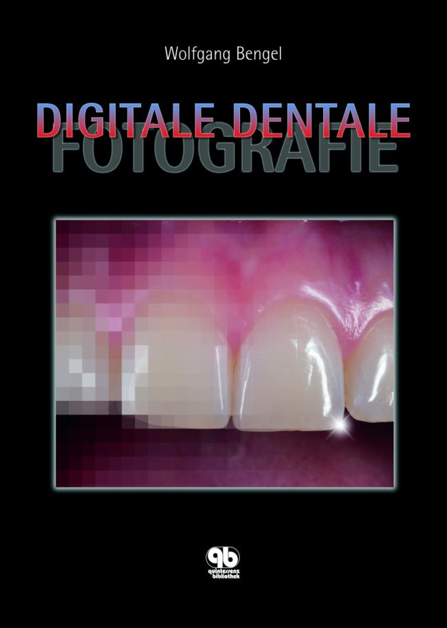 Bengel: Digitale Dentale Fotografie