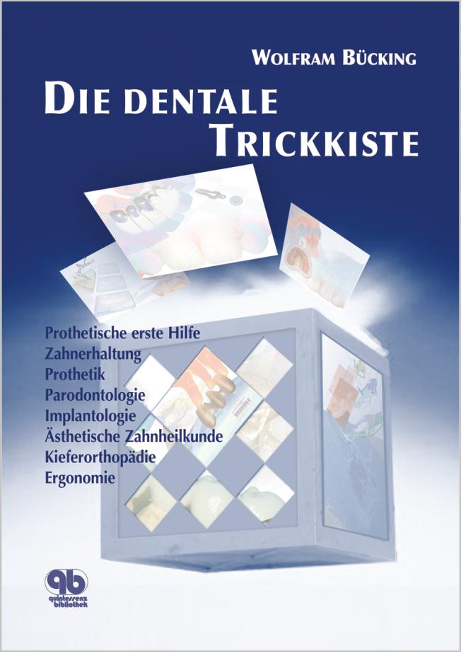 Bücking: Die dentale Trickkiste