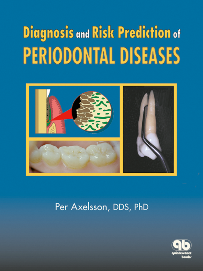 Axelsson: Diagnosis and Risk Prediction of Periodontal Diseases