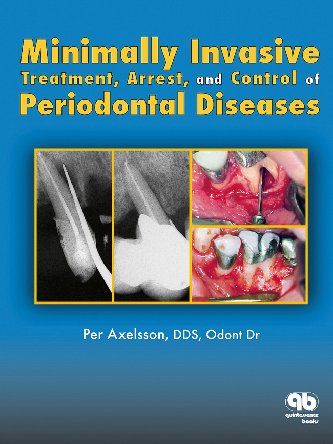 Axelsson: Minimally Invasive Treatment, Arrest, and Control of Periodontal Diseases