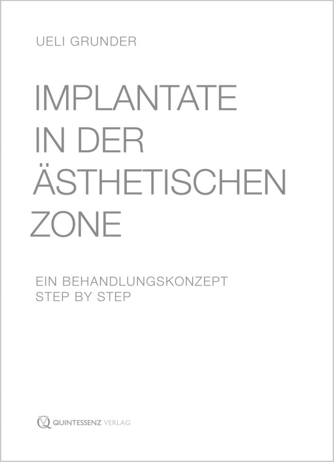 Grunder: Implantate in der ästhetischen Zone