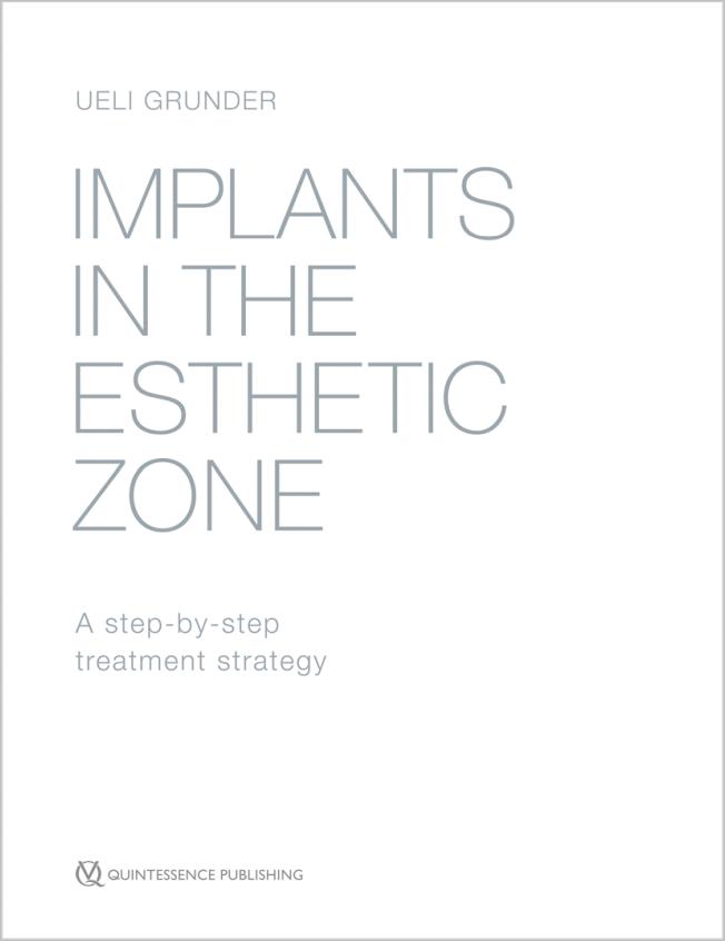 Grunder: Implants in the Esthetic Zone