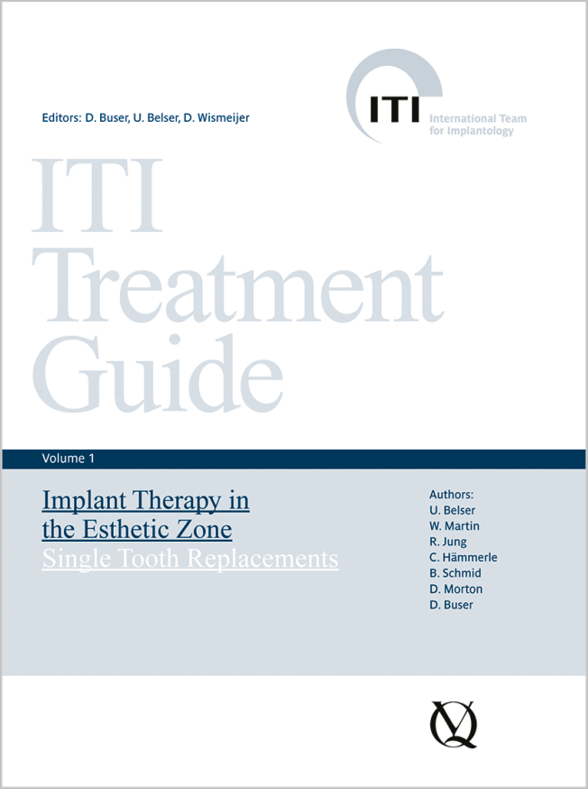 Buser: Implant Therapy in the Esthetic Zone