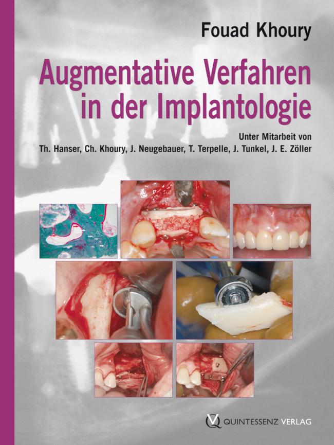 Khoury: Augmentative Verfahren in der Implantologie
