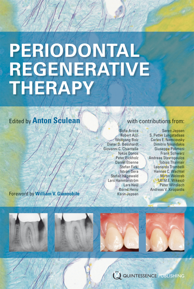 Sculean: Periodontal Regenerative Therapy