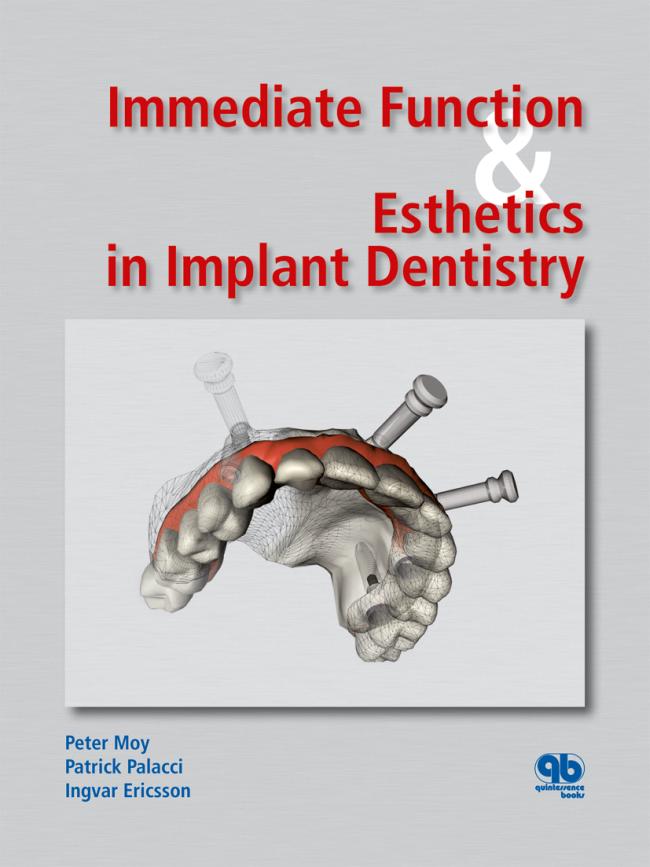 Moy: Immediate Function & Esthetics in Implant Dentistry