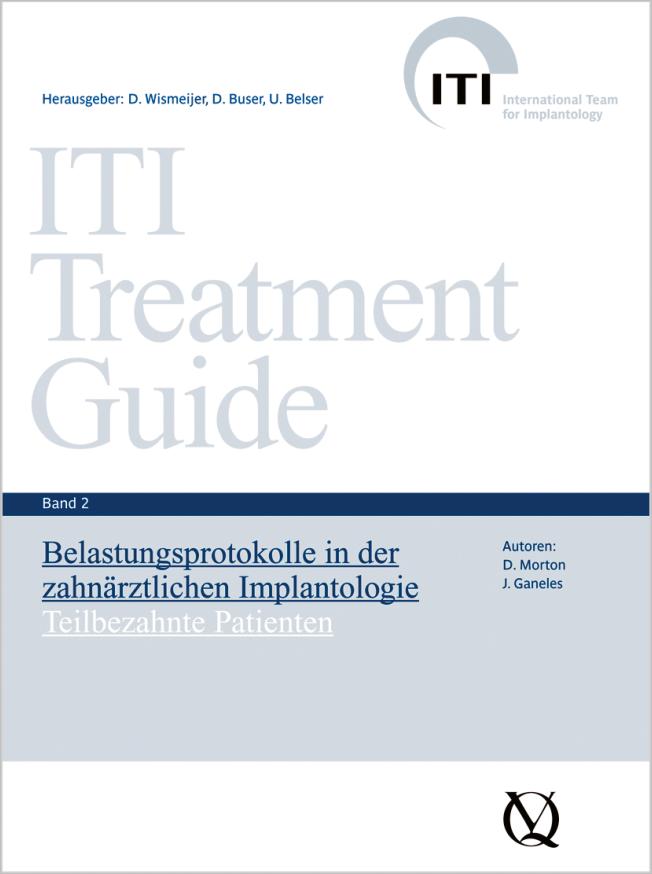 Ganeles: Belastungsprotokolle in der zahnärztlichen Implantologie
