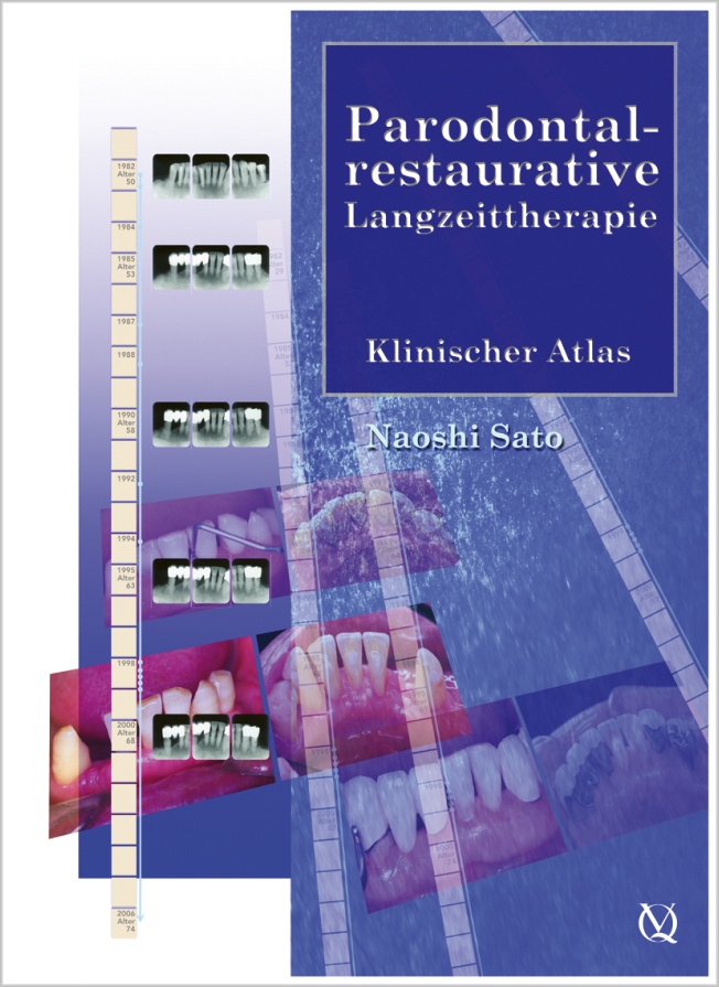Sato: Parodontal-restaurative Langzeittherapie