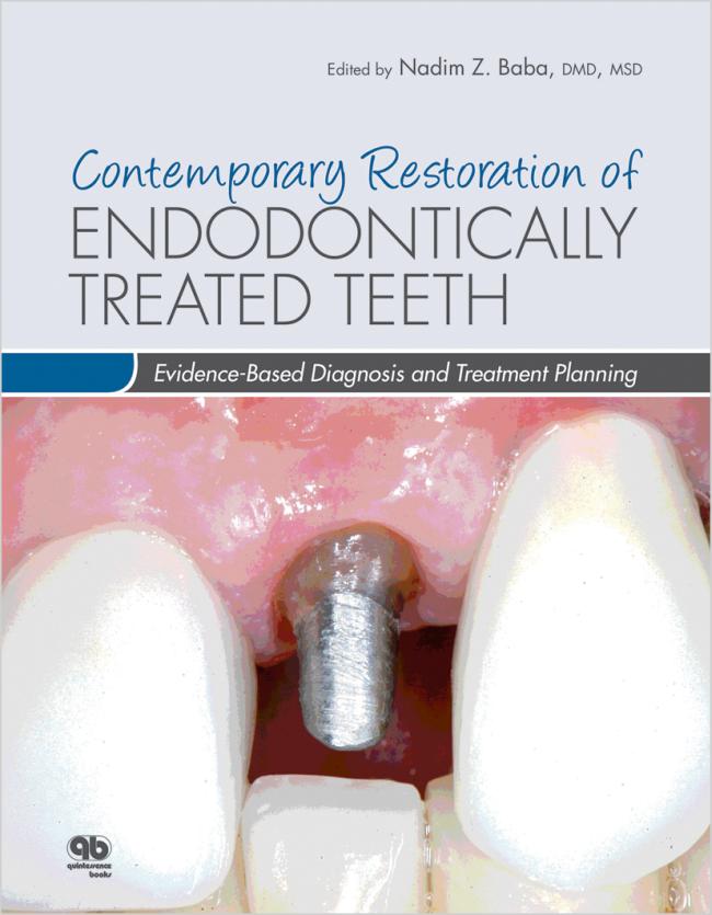 Baba: Contemporary Restoration of Endodontically Treated Teeth