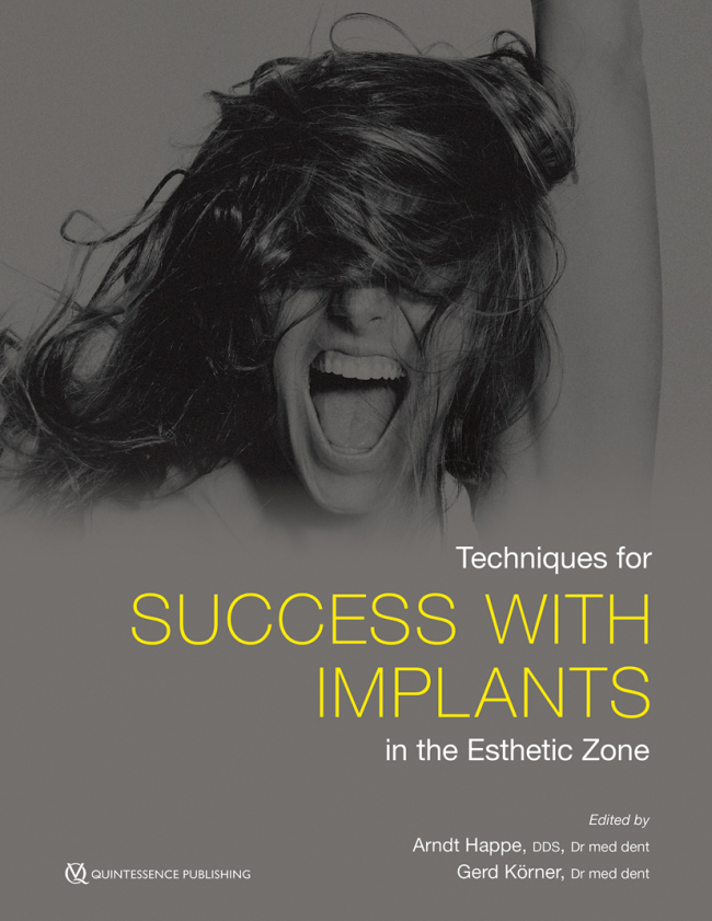 Happe: Techniques for Success with Implants in the Esthetic Zone