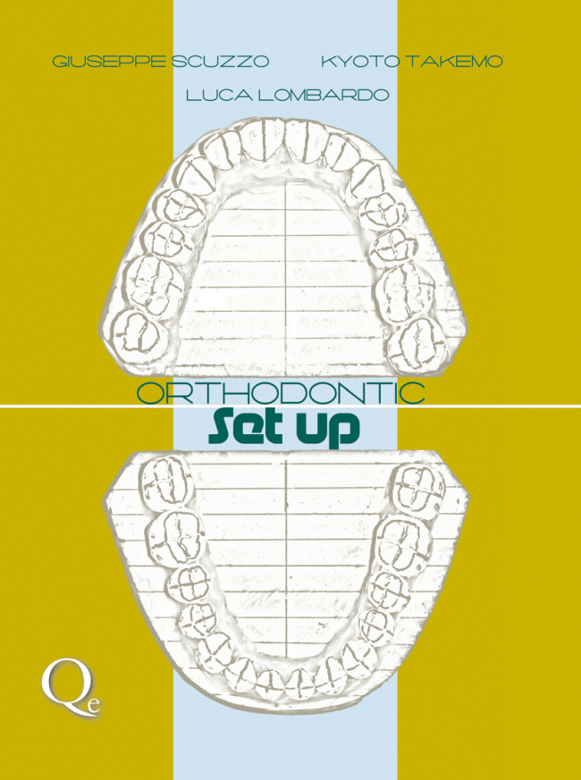Scuzzo: Orthodontic Setup