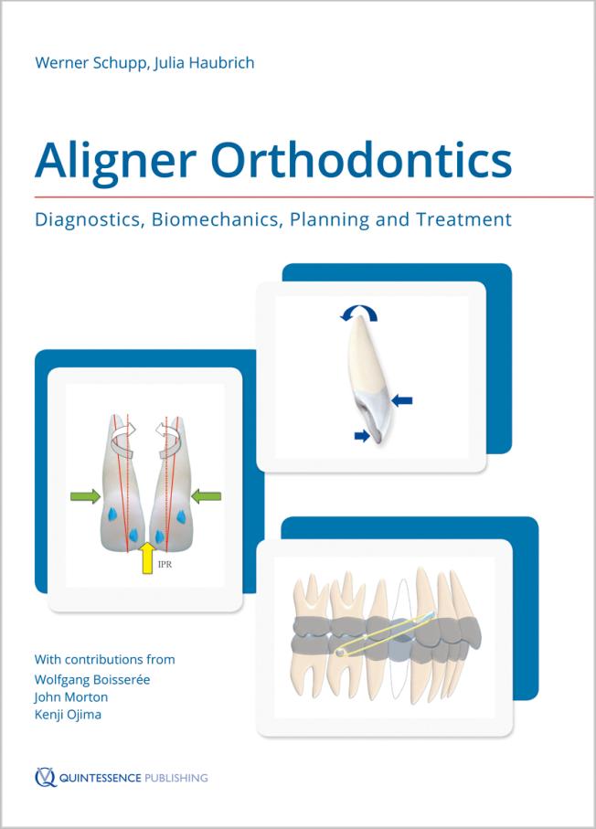 Schupp: Aligner Orthodontics