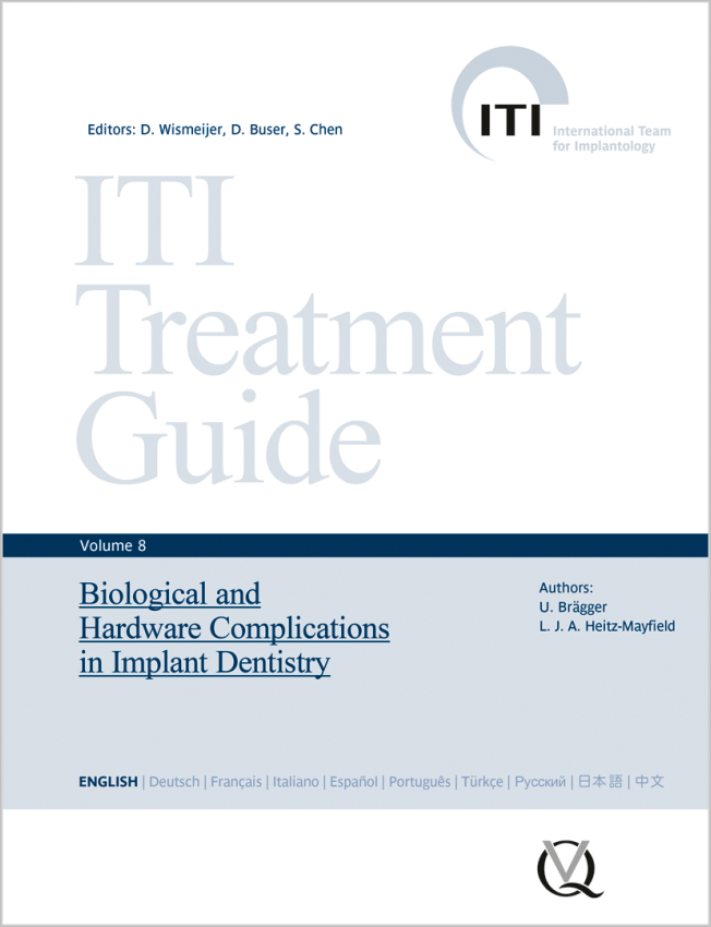 Wismeijer: Biological and Hardware Complications in Implant Dentistry
