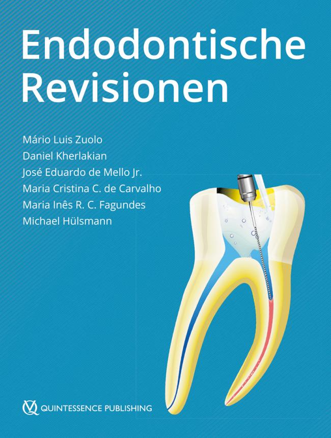 Zuolo: Endodontische Revisionen