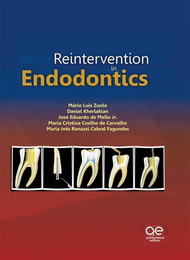 Zuolo: Reintervention in Endodontics