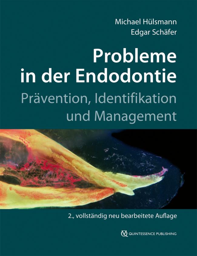 Hülsmann: Probleme in der Endodontie