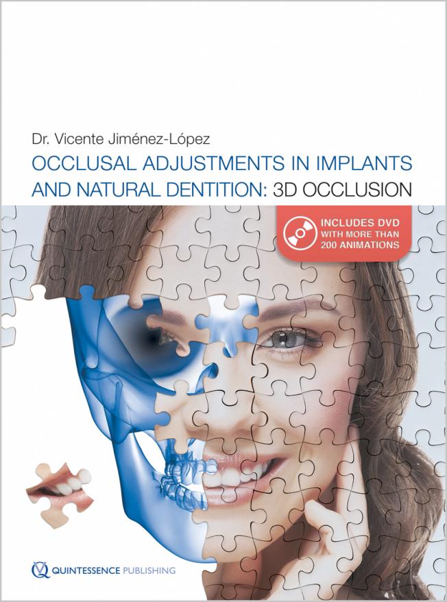 Jiménez-López: Occlusal Adjustments in Implants and Natural Dentition: 3D Occlusion