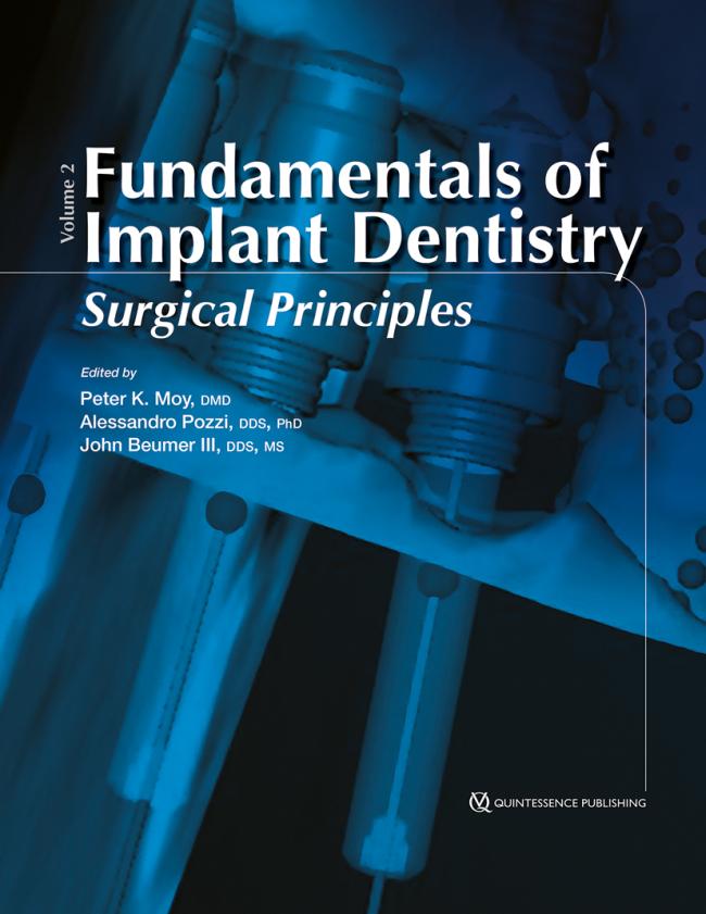 Moy: Fundamentals of Implant Dentistry Volume 2