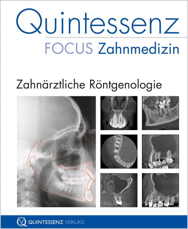 Schulze: Zahnärztliche Röntgenologie
