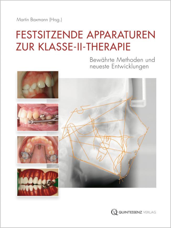 Baxmann: Festsitzende Apparaturen zur Klasse-II-Therapie