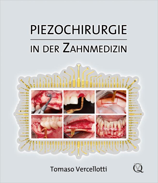 Vercellotti: Piezochirurgie in der Zahnmedizin