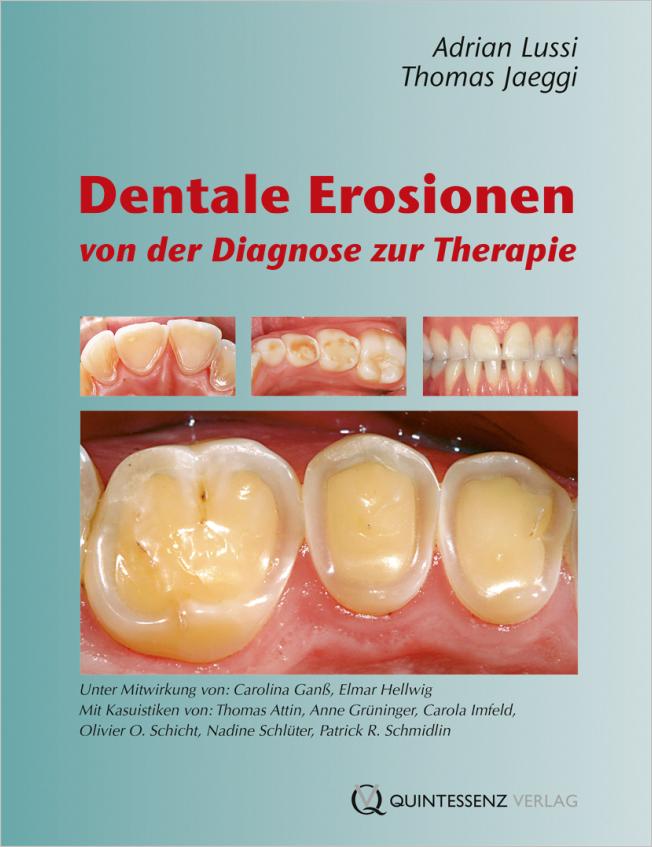 Lussi: Dentale Erosionen
