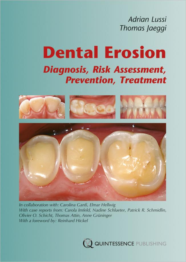 Lussi: Dental Erosion