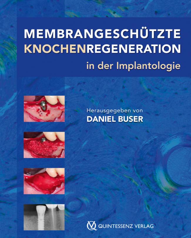 Buser: Membrangeschützte Knochenregeneration in der Implantologie