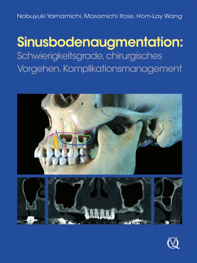 Yamamichi: Sinusbodenaugmentation
