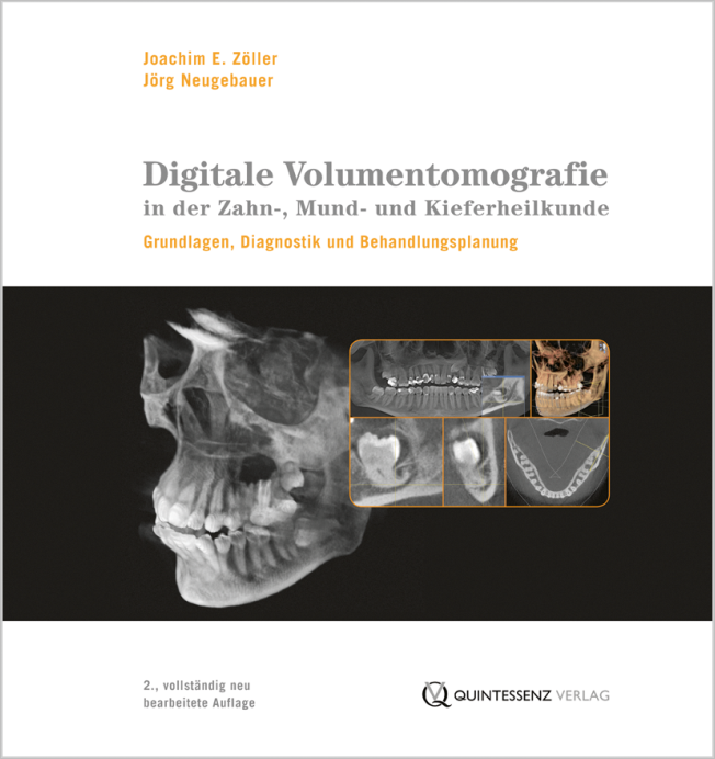 Zöller: Digitale Volumentomografie in der Zahn-, Mund- und Kieferheilkunde