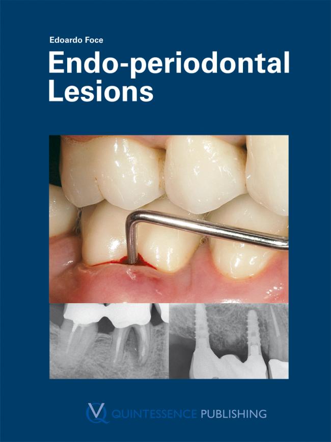 Foce: Endo-periodontal Lesions