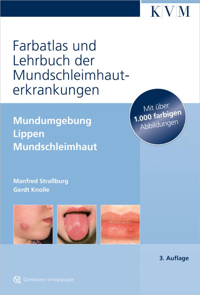 Straßburg: Farbatlas und Lehrbuch der Mundschleimhauterkrankungen