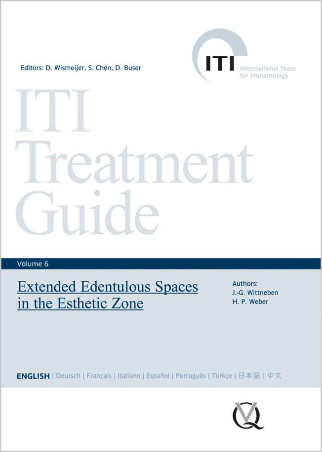 Wismeijer: Extended Edentulous Spaces in the Esthetic Zone