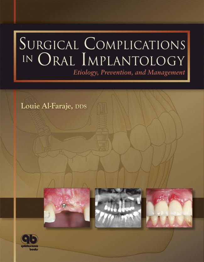 Al-Faraje: Surgical Complications in Oral Implantology