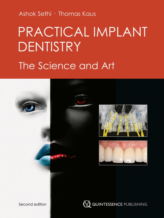 Sethi: Practical Implant Dentistry